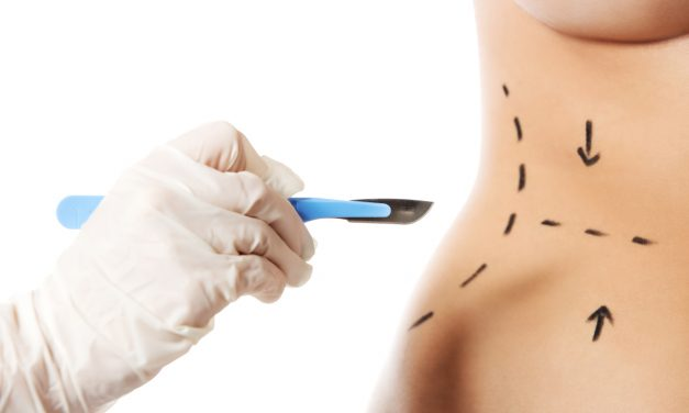 Body Contouring Surgery Procedure