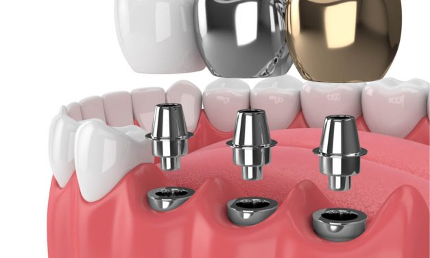 Types of Dental Implants Materials