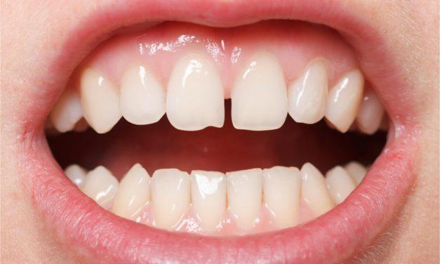 Teeth Bonding for Gaps