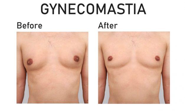 Gynecomastia Treatment Cost