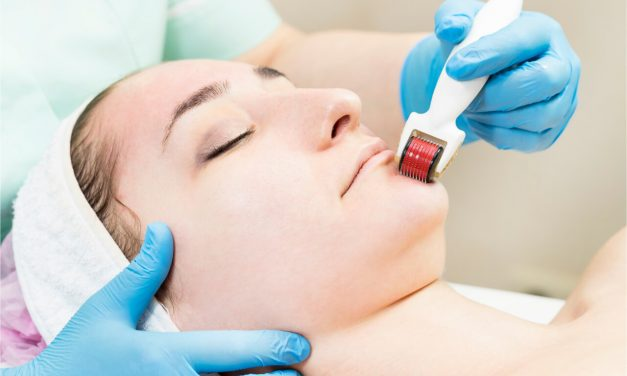 Information About Medical Micro Needling