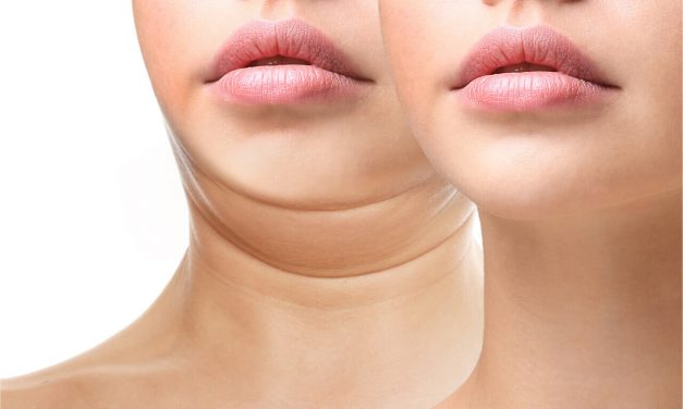 What Are The Top 4 Reasons To Get Neck Plastic Surgery?