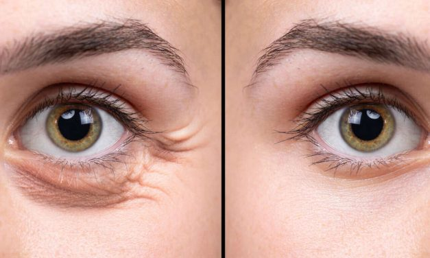 What Is Cosmetic Surgery For Under Eye Bags? (Blepharoplasty)